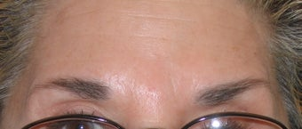 Botox Treatment for Forehead and Brow Wrinkles after 96417