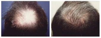 hair transplant before 369164