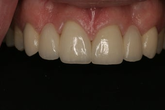 Dental Crowns  after 255699