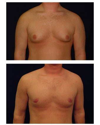 Gynecomastia (Male Breast Reduction) before 149361