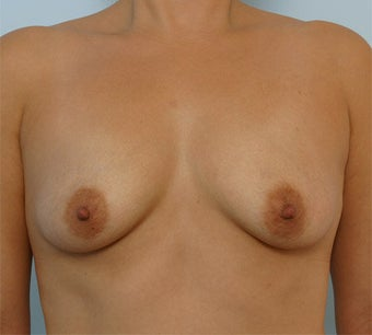 Breast Augmentation before 260940