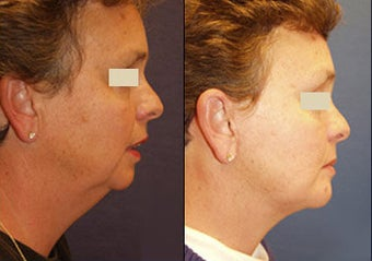 Chin Augmentation before 97278
