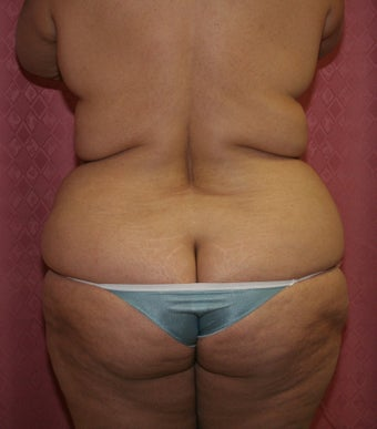 liposuction of abdomen and flanks 582260