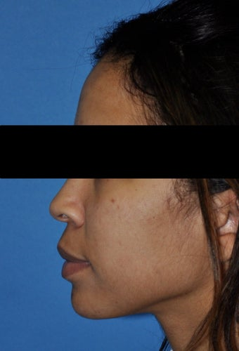 African American Rhinoplasty before 364920
