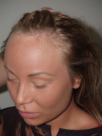 Surgical Hairline Advancement Procedure 535779