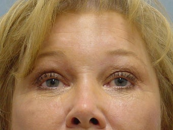 Face Lift, Brow Lift and Blepharoplasty