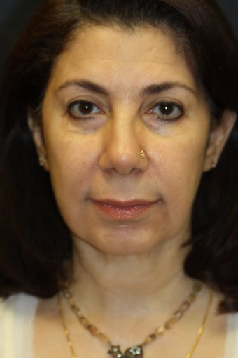 Chin Augmentation with upper/lower blepharoplasty, facelift, radiesse, and buccal fat removal after 527535