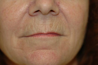 Laser skin resurfacing, eyelid surgery, lip augmentation 434871