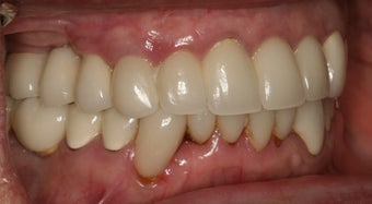 Dental implants and PFM bridge 467144