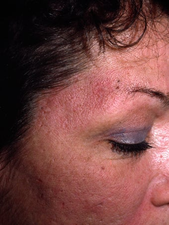 Acne Scarring after 417395