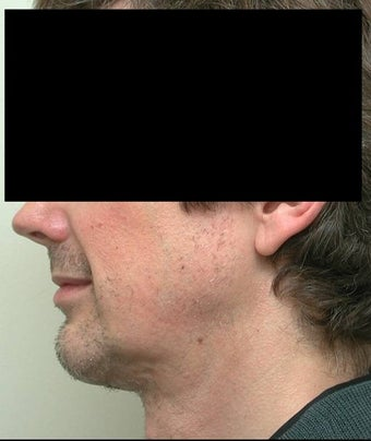Neck Lift and Chin Implant after 106455
