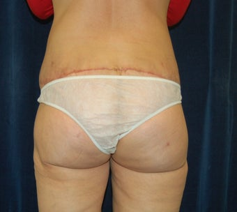 Bi-lateral thigh and buttocks lift with fat transfer after 284106