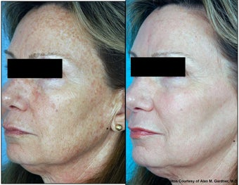 Laser Resurfacing before 130551