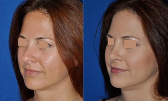 Revision Rhinoplasty before 293543