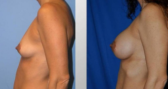 Breast Augmentation  before 256384