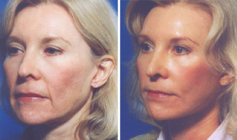 Cheek Lift and Augmentation before 296654