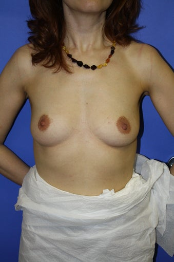 Bilateral breast augmentation before 306452