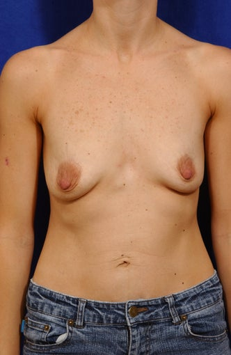 Breast lift with saline implants before 57021