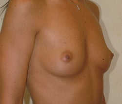 Breast augmentation before and after before 85878