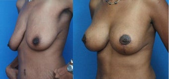 Breast Lift with Implants before 134093