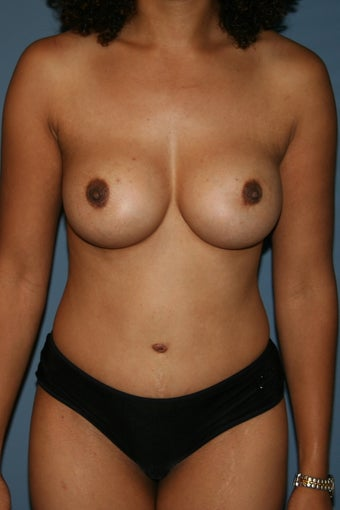 Mommy Makeover Breast augmentation and tummy tuck after 617914