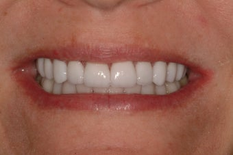 Smile Makeover after 231519
