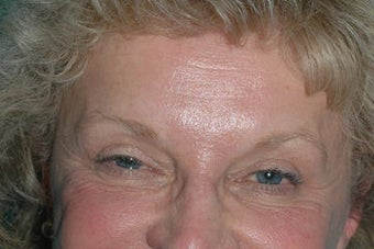 Crowsfeet treated with Botox Cosmetic before 118313