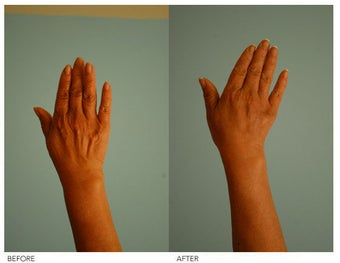 Hand Rejuvenation (with Fat Transfer) before 136421