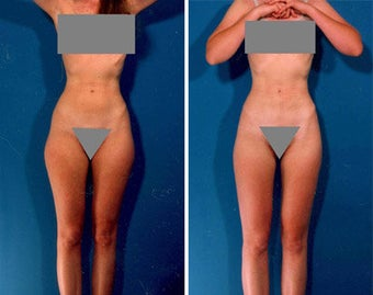 Liposuction before 636106