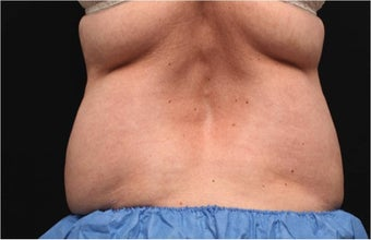 NonInvasive Fat Removal with CoolSculpting -Invented by Dr. Dieter Manstein before 442121