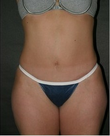 Abdominoplasty after 99922