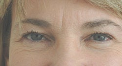 Botox forehead lines (frown lines)  before 91313