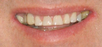 Porcelain veneers and crowns before 503136