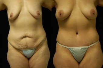 Tummy Tuck and Breast Augmentation, gel implants before 392054