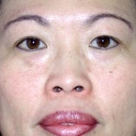 Asian Eyelid Surgery before 448672