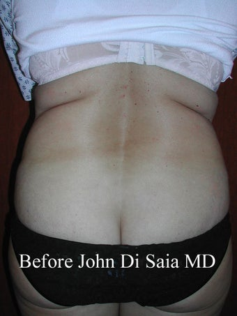 Butt Lift in a prior Tummy Tuck Patient  before 100769