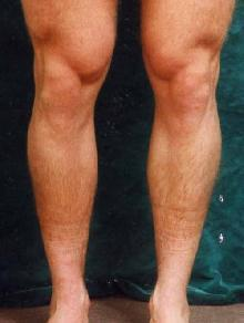 Men's Calf Augmentation  519054