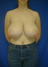 Breast Reduction Surgery before 122980
