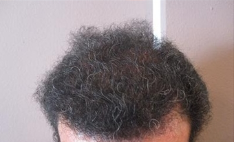 Hair Transplant after 387806