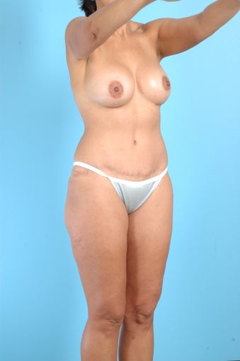 Tummy Tuck, Liposuction, Breast Augmentation after 458976