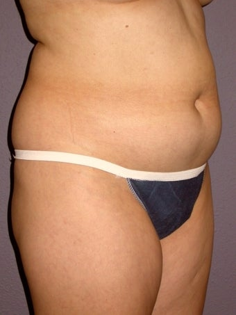 Liposuction 313998