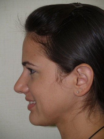 Rhinoplasty after 204933