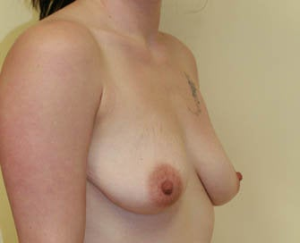 Breast Augmentation & Scarless Breast Lift before 226470