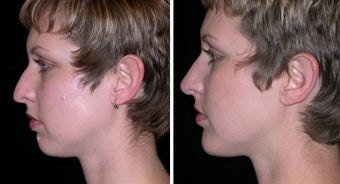 25 year old female, chin implant before 630624