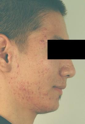 Laser Acne Treatment before 82962