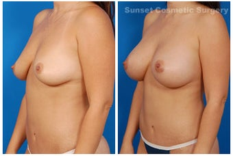 Mommy Makeover: Breast Implants & Tummy Tuck