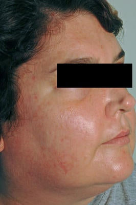 Laser Acne Treatment after 82969