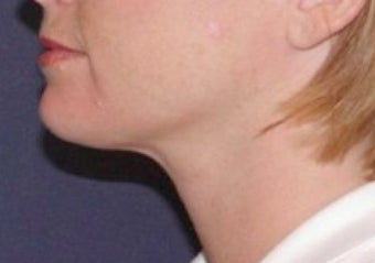 Neck lipo after 374872