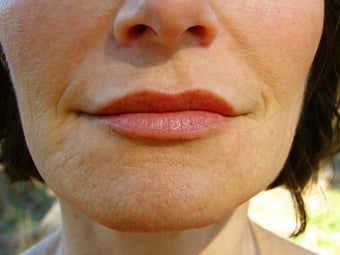 Sculptra, Radiesse, Restylane, and Botox Injection, and Obagi Nu Derm after 257711