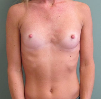 Breast Augmentation before 598642